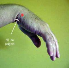douleur de la main ou du poignet acupuncture fiel potins. Black Bedroom Furniture Sets. Home Design Ideas